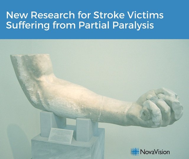 New Research For Stroke Victims Suffering From Partial Paralysis