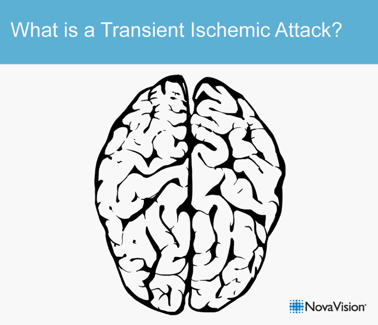 What Is A Transient Ischemic Attack?
