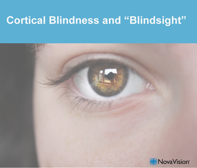 """Cortical Blindness And """"Blindsight"""""""