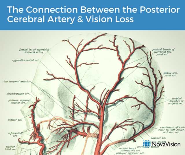 The Connection Between The Posterior Cerebral Artery And Vision Loss