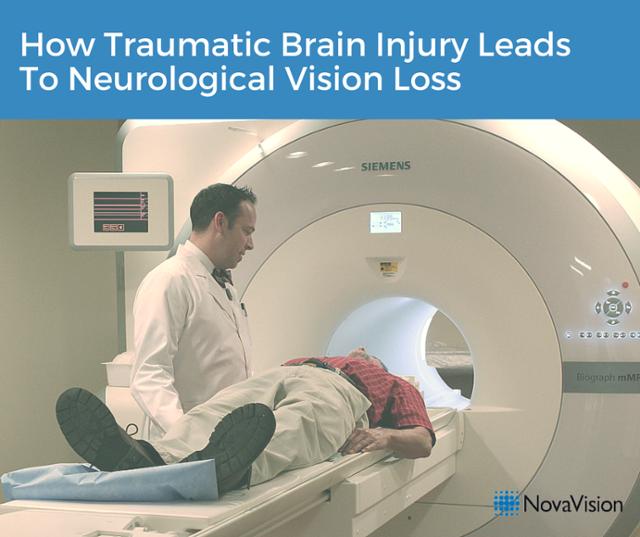 How Traumatic Brain Injury Leads To Neurological Vision Loss