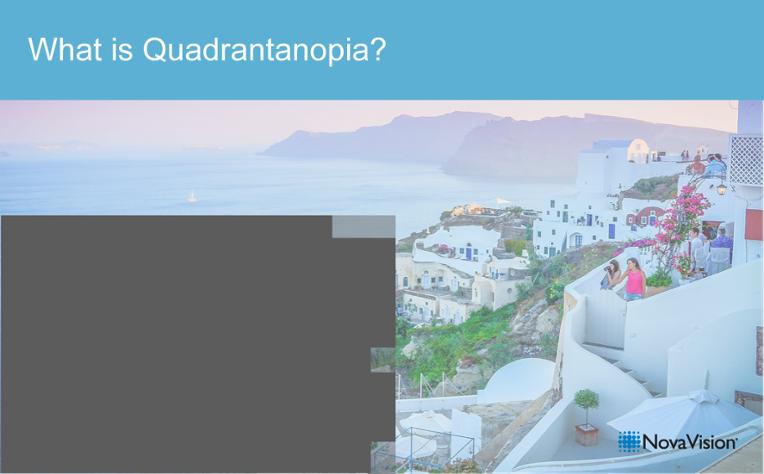 What Is Quadrantanopia?